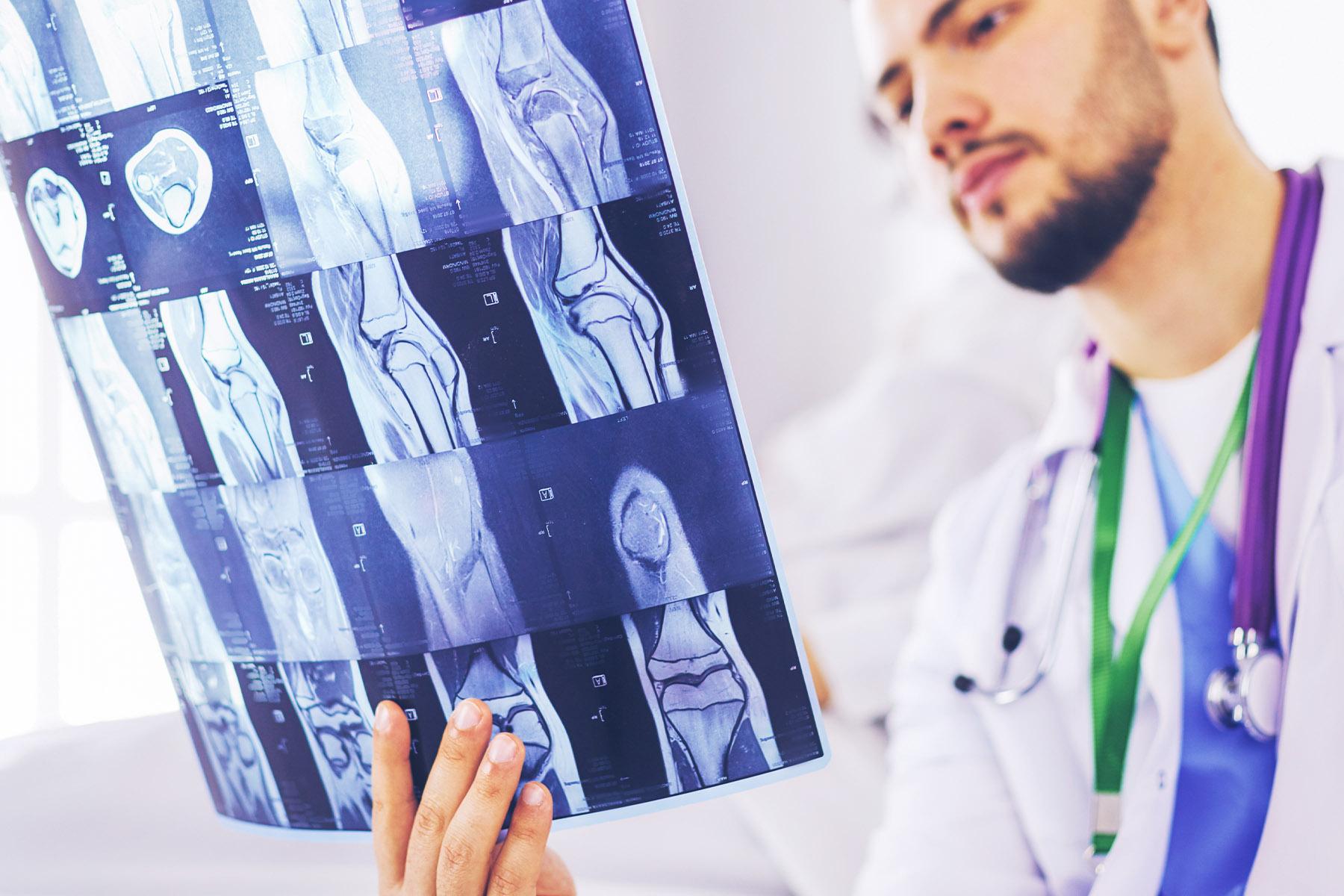 A doctor examining an xray.
